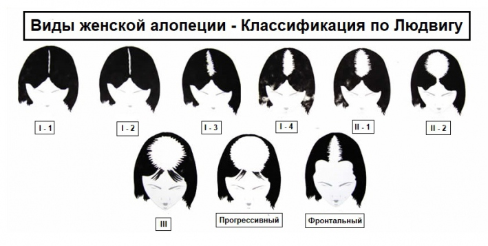 Сильное выпадение волос у женщин – причины, способы лечения волос