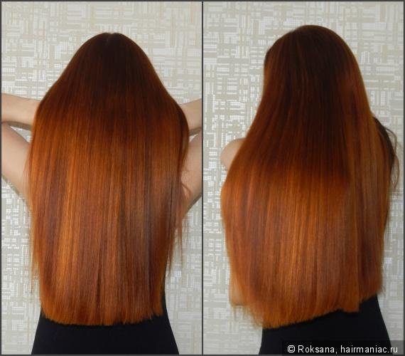 Генетическая предрасположенность к выпадению волос у женщин