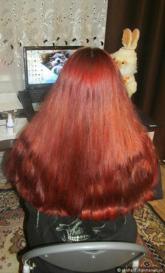 Всд причина выпадения волос