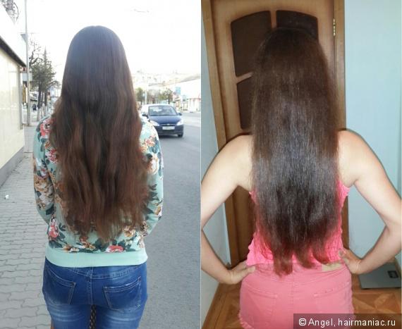 Лучшие средства для роста волос у мужчин