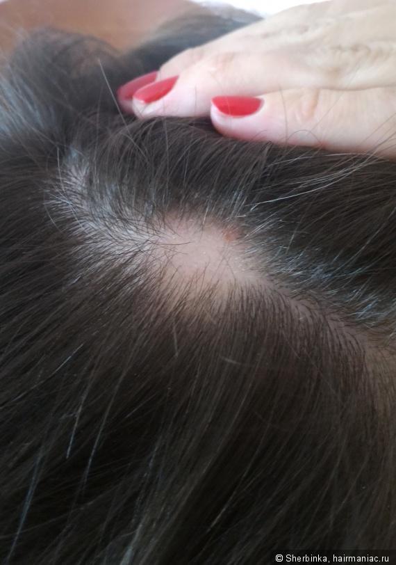 Маски для волос для густоты и роста волос с кокосовым маслом