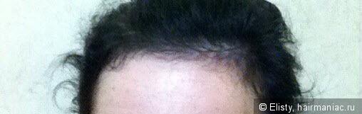 Средство лонда спрей для роста волос очень