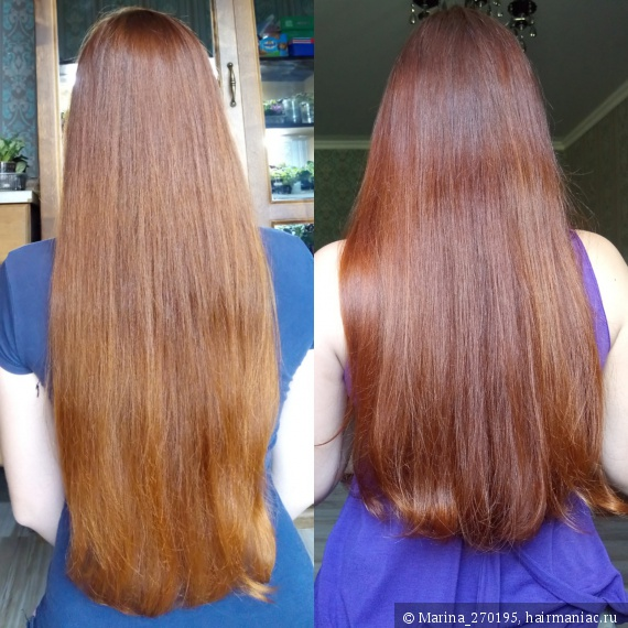 Как вылечить волосы от выпадения и ломкости