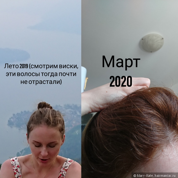 При выпадении волос уколы отзывы