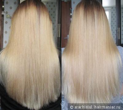 Лечение волос ультразвуком